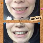 しみない、痛くない!新しい歯のホワイトニング